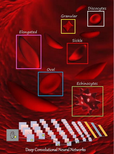 Classifying Sickle Cell Anemia RBC in an automated manner with high accuracy based on Deep Convolutional Neural Network method for 8 SCD patients (over 7,000 single RBC images) for both oxygenated and deoxygenated RBCs.